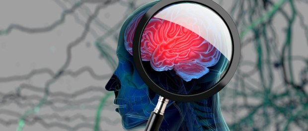 Cleveland Clinic spinoff company to start clinical trials for Alzheimer's disease